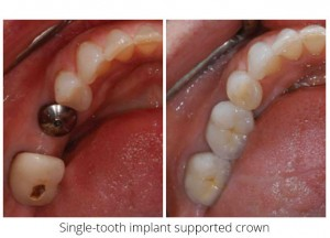 Single-tooth implant support crown