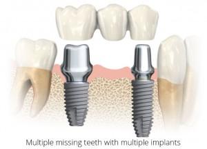 Multiple missing teeth with multiple implants